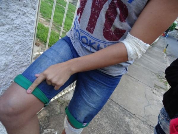Jovem aponta ferimento no joelho